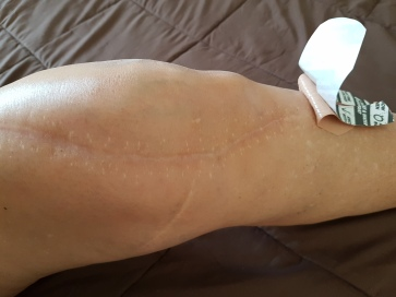 my knee w tape 1